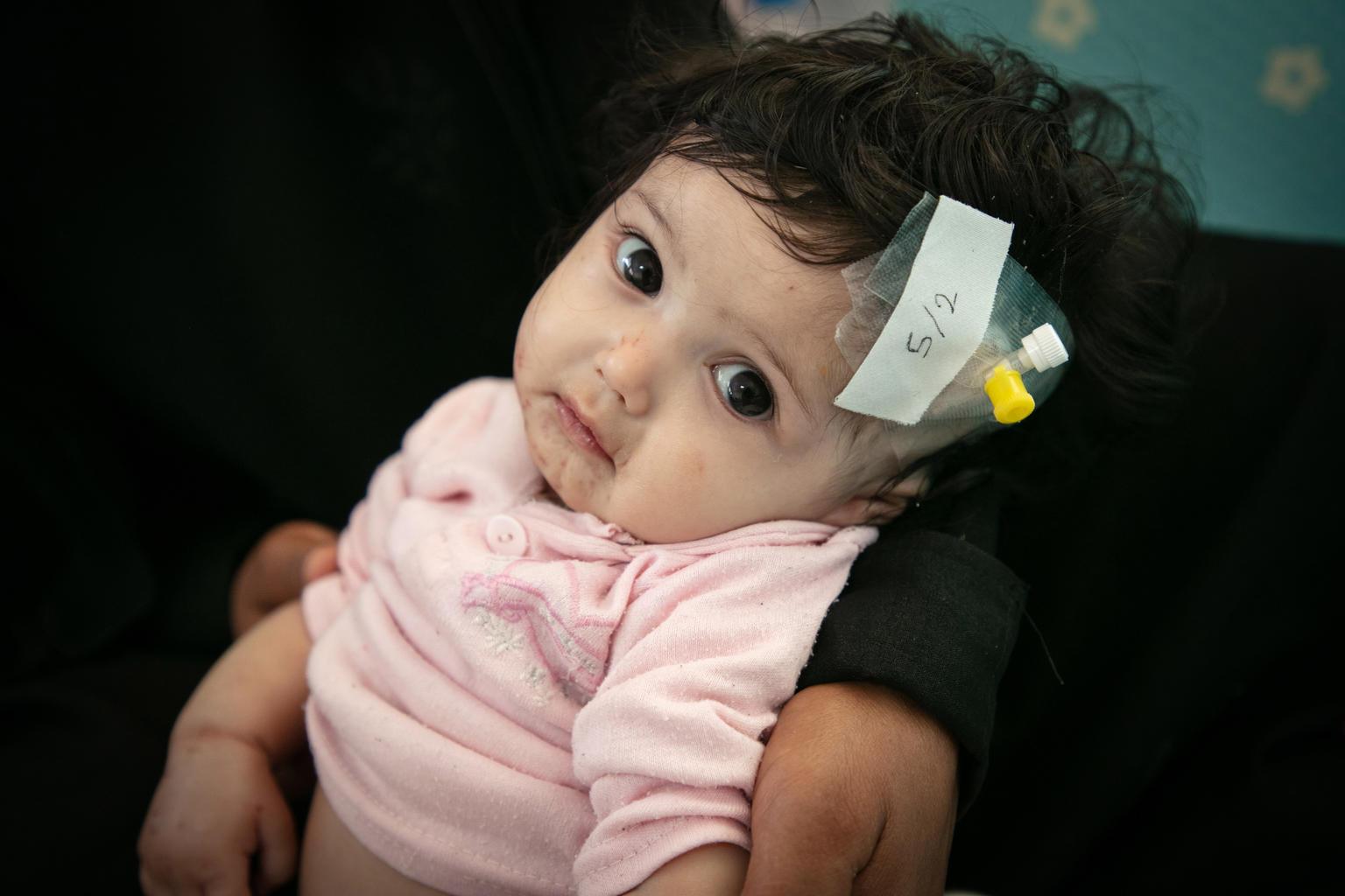 Humanitární krize vJemenu
